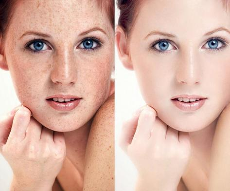 祛痘祛斑加盟图片