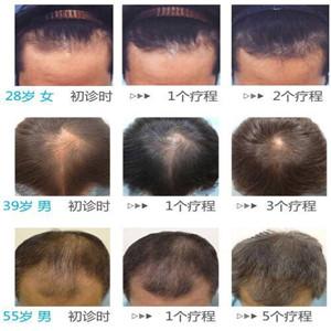 黑黛新发则防脱发掉发生发加盟图片