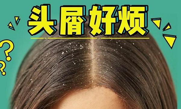 养发护发加盟:有头皮屑用什么产品好?