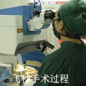 飛秒激光近視手術