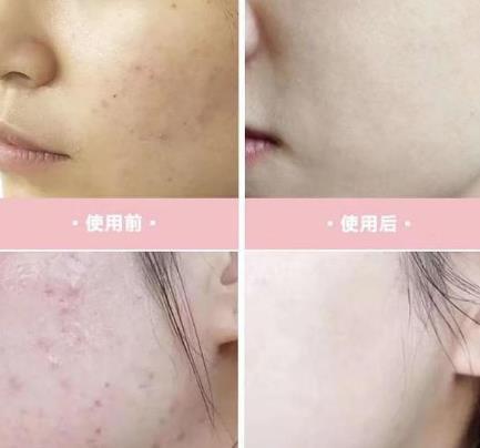 鑫妍国际淡斑祛痘加盟