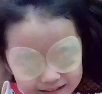 黄金视力眼贴加盟